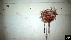 لکه های خون روی دیوار یک بیمارستان در آله پو، سوریه.