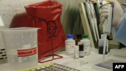 Vazhdojnë kërkimet për një vaksinë kundër virisut HIV