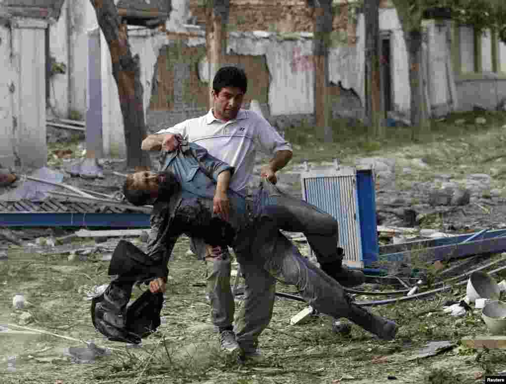 Bomba hücumu zamanı yaralanan polis işçisi