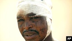 A victim of post election violence waits for treatment at St Gerrard's Catholic Hospital in Kaduna, Nigeria, April 20, 2011