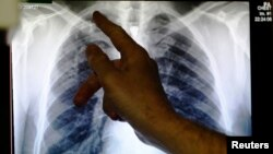File - A doctor points to an x-ray showing a pair of lungs infected with tuberculosis in Ladbroke Grove in London, England.
