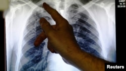 A doctor points to an x-ray showing a pair of lungs infected with TB (tuberculosis).
