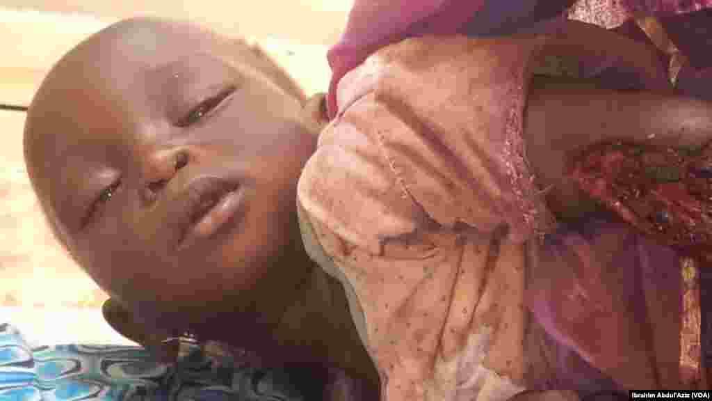 Wasu mutane da suka ji raunuka bayan harin 'yan bindiga da ake zaton Boko Haram ne a kauyen Chakawa ran 26 ga watan Junairu, 2014.