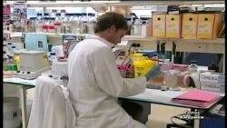 Паркінсона лікують не пускаючи до мозку кальцій
