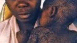 Crise de sarampo no Uíge – 1:51