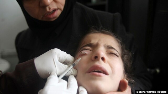 A doctor treats a child showing symptoms of Leishmaniasis at a hospital in Aleppo, February 11, 2013.