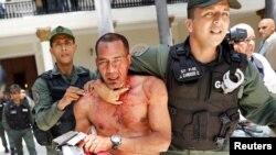 5일 베네수엘라의 수도 카라카스에서 친정부 지지자들이 의회에 난입해 인질극을 벌인 후 경찰에 끌려나가고 있다.