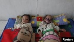 Dua anak balita Korea Utara yang menderita kekurangan gizi parah (foto: dok). UNICEF menyerukan bantuan pengobatan kepada sekitar 25.000 anak balita yang kekurangan gizi sangat parah di sana.