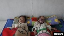북한 혜주시 병원에 입원한 북한 아동들. (자료사진)