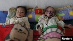 Anak-anak Korea Utara penderita malnutrisi yang parah, sedang dirawat di rumah sakit di Haeju, propinsi Hwanghae selatan (Foto: dok).