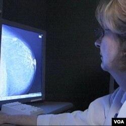 Manje agresivna operacija isto toliko učinkovita u tretmanu raka dojke