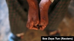 Penyakit kusta dulu dianggap kutukan. Upaya edukasi dan pengobatan terus dilakukan, tapi hingga saat ini masih banyak tantangan harus diselesaikan. (Foto: Reuters/Soe Zeya Tun)