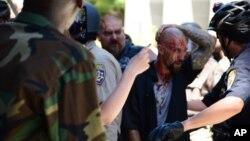 Polisi California mengamankan demonstran yang luka-luka dalam bentrokan di Sacramento, Minggu (26/6).