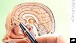 美国医生致力于探究脑癌的治疗方法