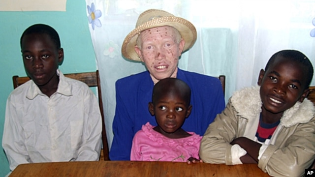 Mary Owido sits with her children Steven, left, Stella, and Brayan. She is albino, lacking pigmentation responsible for giving color to skin, eyes and hair. Mary says she is only comfortable when at work or at home with her husband and children, (File Nov