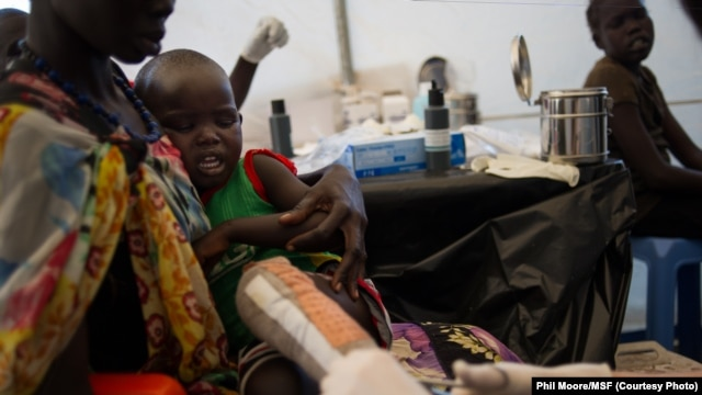 A boy who suffered severe burns to his leg is tended to by a Médecins Sans Frontières (MSF) doctor at the MSF clinic set up at the camp for  displaced people in the grounds of the United Nations Mission to South Sudan (UNMISS) base in Juba, South Sudan, o