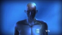 Study: Electric Brain Stimulation Alleviates Some Disorders