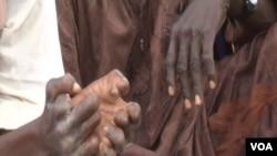 Hands of people handicapped by leprosy, Yaounde, Jan. 21, 2021. (Moki Edwin Kindzeka/VOA)