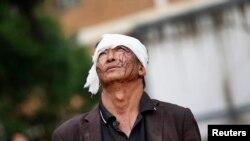 Seorang pria yang cedera berjalan di samping reruntuhan akibat gempa di Ludian, provinsi Yunnan 4 Agustus 2014.