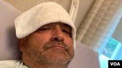 Carlos Gavidia me kompresa të ftohta në ballë (Marrë nga Carlos Gavidia)