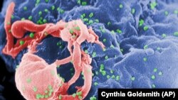 This undated photo provided by the Centers for Disease Control and Prevention shows a scanning electron micrograph of multiple round bumps of the HIV-1 virus on a cell surface. (Cynthia Goldsmith/Centers for Disease Control and Prevention via AP)