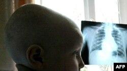 Azərbaycanda 28 052 onkoloji xəstə var