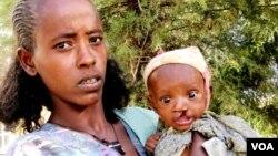 Ethiopia-Baby-Lips split