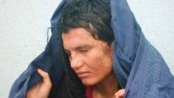Afg'onistonning haq-huquqsiz, madadga muhtoj ayollari