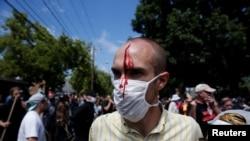 美国维吉尼亚州夏洛特维尔爆发白人至上主义者与反示威者的冲突,一名男子受伤。(2017年8月12日)