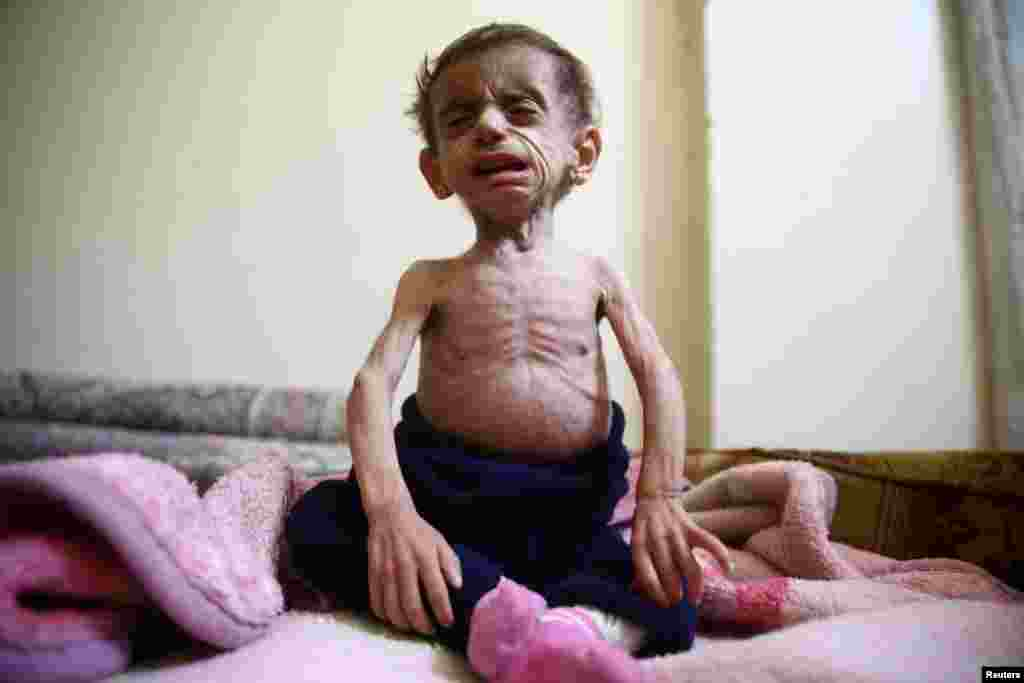 Two-and-a-half year old Hala al-Nufi, who suffers from a metabolic disorder which is worsening due to the siege and food shortages in the eastern Ghouta, reacts as she sits on a bed in the Saqba area, in the eastern Damascus suburb of Ghouta, Syria.