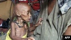 Еще одна жертва голода в Сомали.