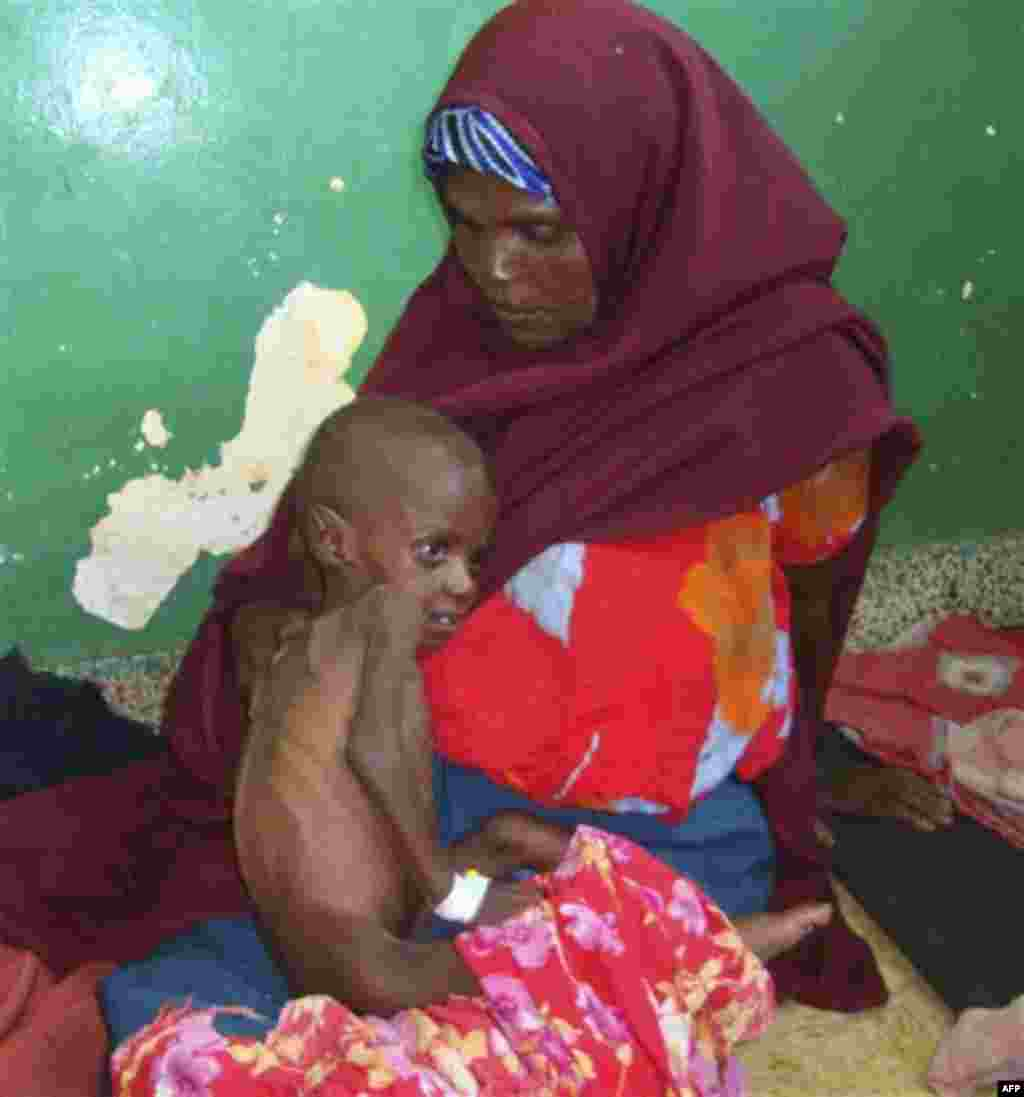 A Somali woman from southern Somalia hold her malnourished child in Banadir hospital in Mogadishu, Somalia, Thursday, July 21, 2011. Somalia's 20-year-old civil war is partly to blame for turning the drought in the Horn of Africa into a famine. Analysts w
