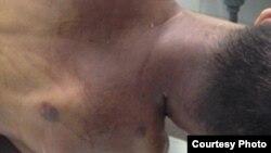 Những vết bầm tím trên thi thể của anh Vũ Nam Ninh.