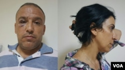 VOA Turkish's Mahmut Bozarslan (L) and VOA Kurdish's Hatice Kamer (R) after being attacked in Midyat, Turkey on June 8.