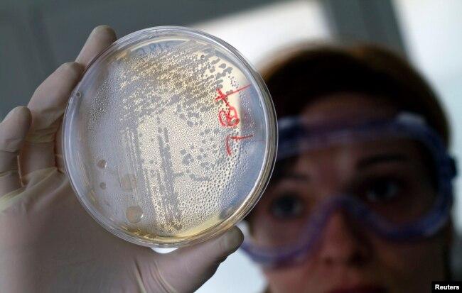 Pekerja laboratorium sedang mencari bakteri E.coli dalam sel-sel sayuran di dalam cawan petri..