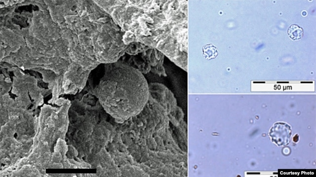 Microscopic fossils of 6,000-year-old garlic mustard seed, the earliest recorded use of a spice in cooking. (Courtesy of University of York, BioArCh)