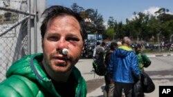 Công dân Mỹ Michael Churton, bị thương vì tuyết lở sau động đất ở Everest Base Camp đến sân bay Kathmandu, Nepal, ngày 27/4/2015. Trận động đất mạnh gây ra lở tuyết trên núi Everest, khiến ít nhất 18 người thiệt mạng, chôn vùi một phần khu trại dành cho người leo núi ở chân ngọn núi cao nhất thế giới.