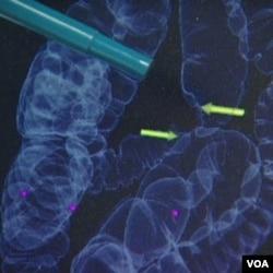 Jika sel-sel tidak normal atau polip ditemukan selama berlangsungnya kolonoskopi dengan CT scan, kolonoskopi biasa dilakukan untuk mengangkat polip tersebut.