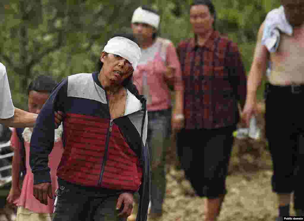 An injured woman walks with her relatives after an earthquake hit Longtoushan township, Ludian county, Yunnan province, Aug. 4, 2014.