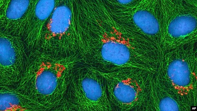 This undated image made available by the National Institutes of Health and National Center for Microscopy in Aug. 2013 shows cancerous cells, called HeLa cells.