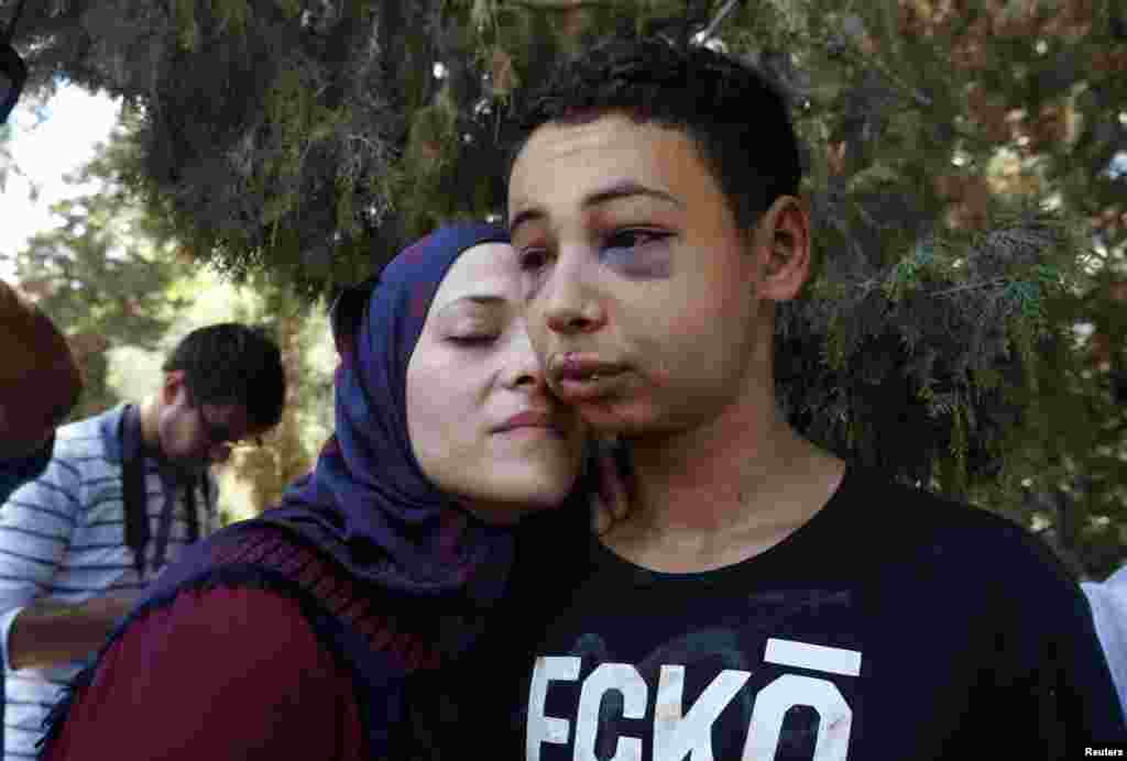 Tariq Khdeir (R) is greeted by his mother after being released from jail in Jerusalem. An Israeli judge released the 15-year-old American of Palestinian descent from jail and placed under house arrest. Khdeir was detained and beaten by Israeli police in East Jerusalem. Khdeir, from Tampa, Florida, is a cousin of Mohammed Abu Khudeir, 16, whose abduction and killing in Jerusalem sparked violent protests and calls from Palestinians for a new uprising against Israel.