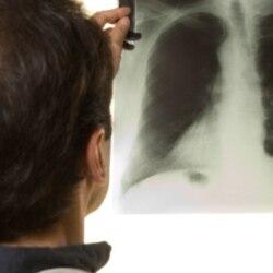 Tuberculose em Malanje 1:41