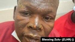 VaLengwani Mavhunga (Mufananidzo kubva kuZimbabwe Lawyers for Human Rights)