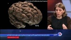 تحریک الکتریکی مغز به درمان کودکان مبتلا به اوتیسم کمک میکند