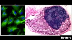Image is of replacement thymus tissue. (MRC Center for Regenerative Medicine, University of Edinburgh)