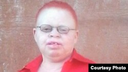 Siphelile Machingamire Woman Living With Albinism