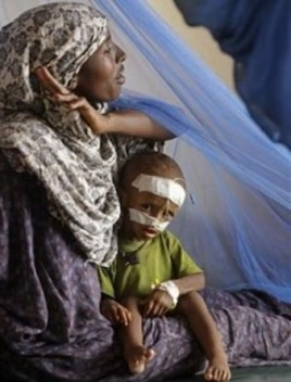A woman sits with her child at a local hospital to receive treatment for malnutrition at the border town of Dadaab, Kenya, Saturday, July 23, 2011
