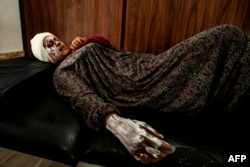 Syrian patient Fatima al-Issa who was hit by shrapnel during Turkish bombardment of Ras al-Ayn, rests after receiving treatment at a hospital in Tal Tamr in Syria's northeastern Hasakeh province, Oct. 11, 2019.