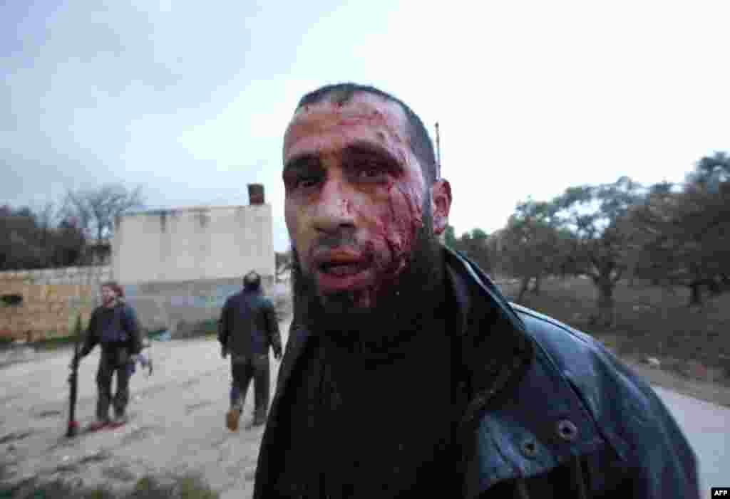 Поранений сирійський повстанець дорогою до шпиталю в Ідлібі, 8-ме лютого. (AP)