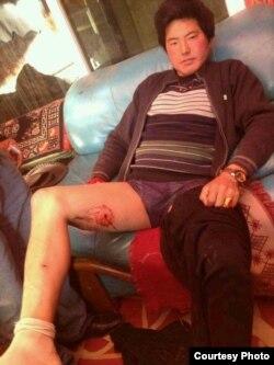 藏族青年丹正(Tamdin)在甘孜州炉霍县因进行宗教仪式遭到警察枪击,子弹击中右侧大腿。(图片由自由西藏运动提供)